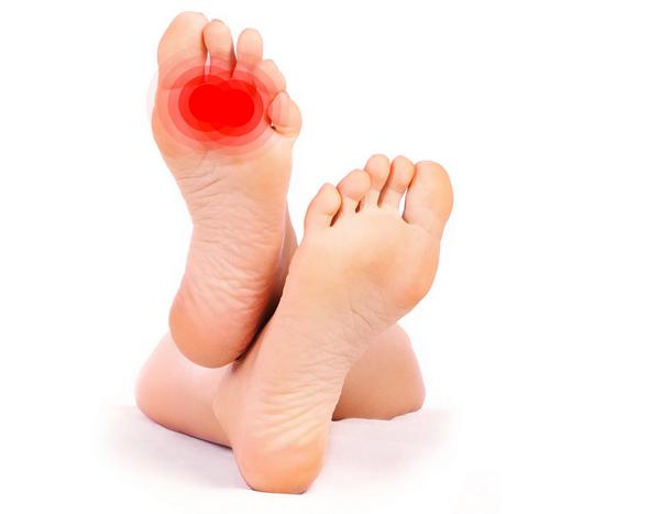 Gejala dan Penyebab Neuroma serta Pencegahannya